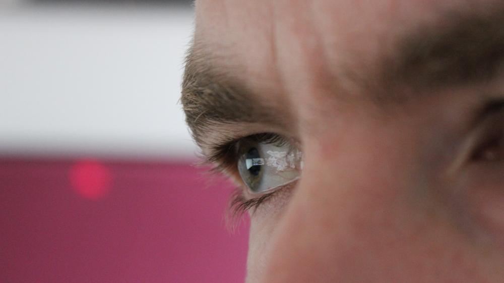 Eye - Original